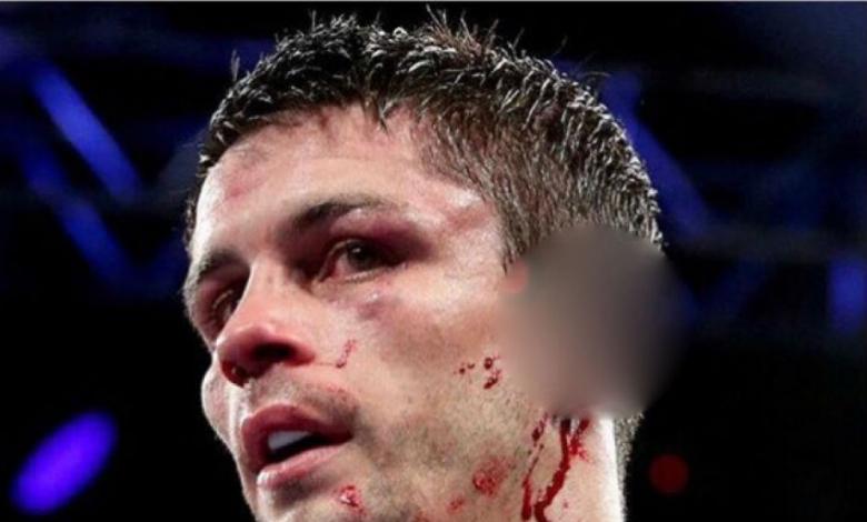 Върна се спомена за Тайсън-Холифийлд, откъснаха ухото на боксьор (ВИДЕО/СНИМКА 18+)