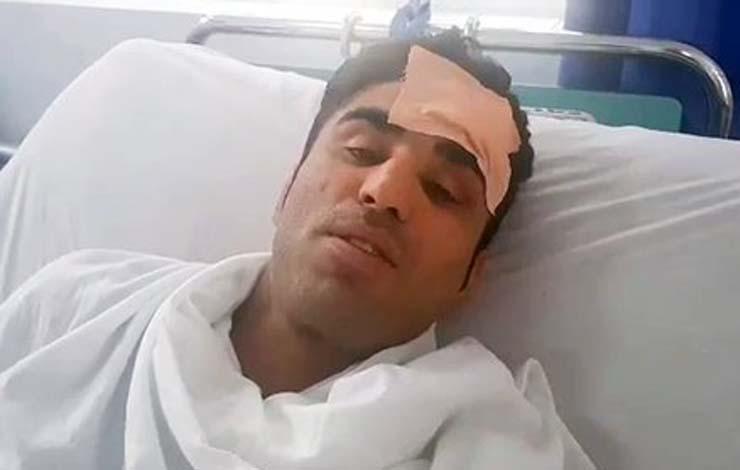 ММА боец оцеля след намушкване в главата