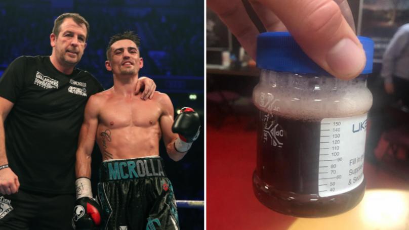 Суровата действителност на професионалния бокс (СНИМКА)