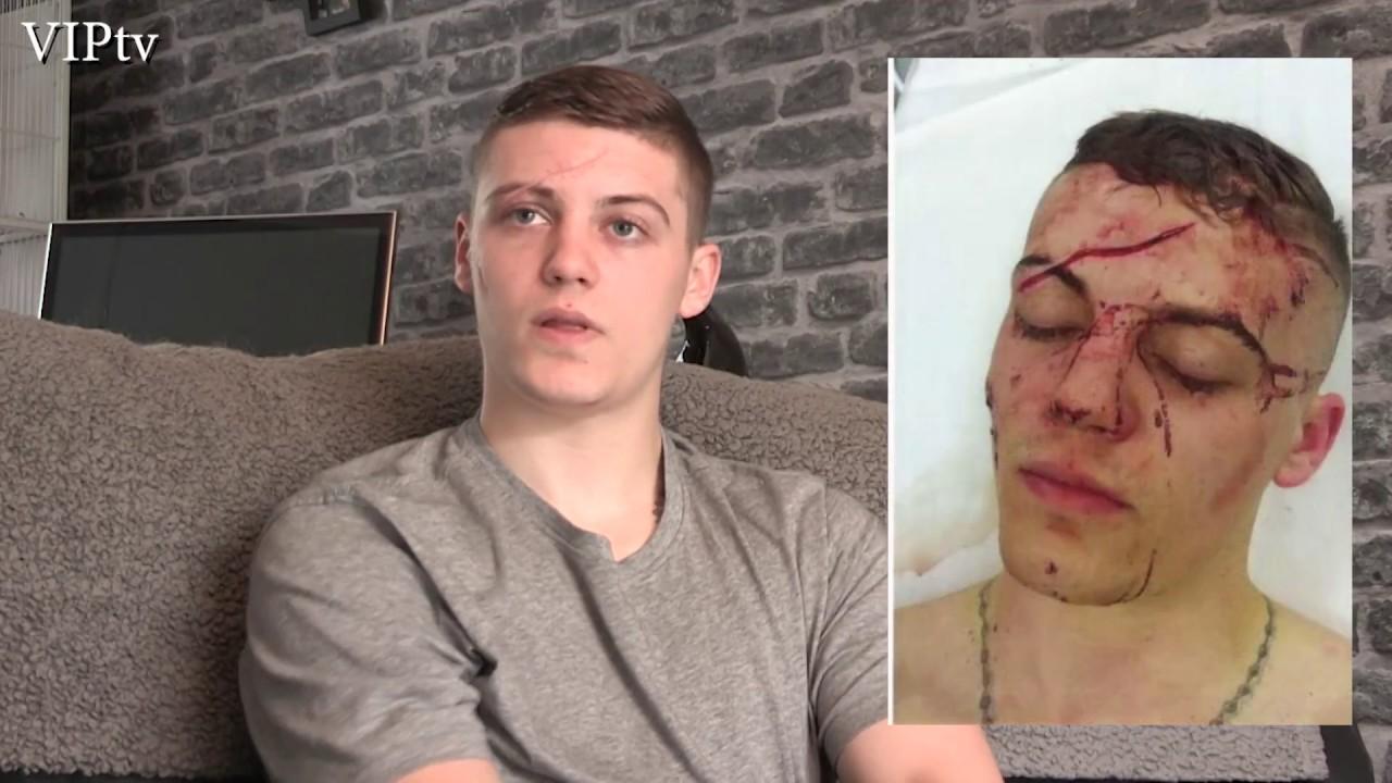 Разказ за ужаса! Боксьор показа лицето си след брутална атака! (СНИМКИ 18+)