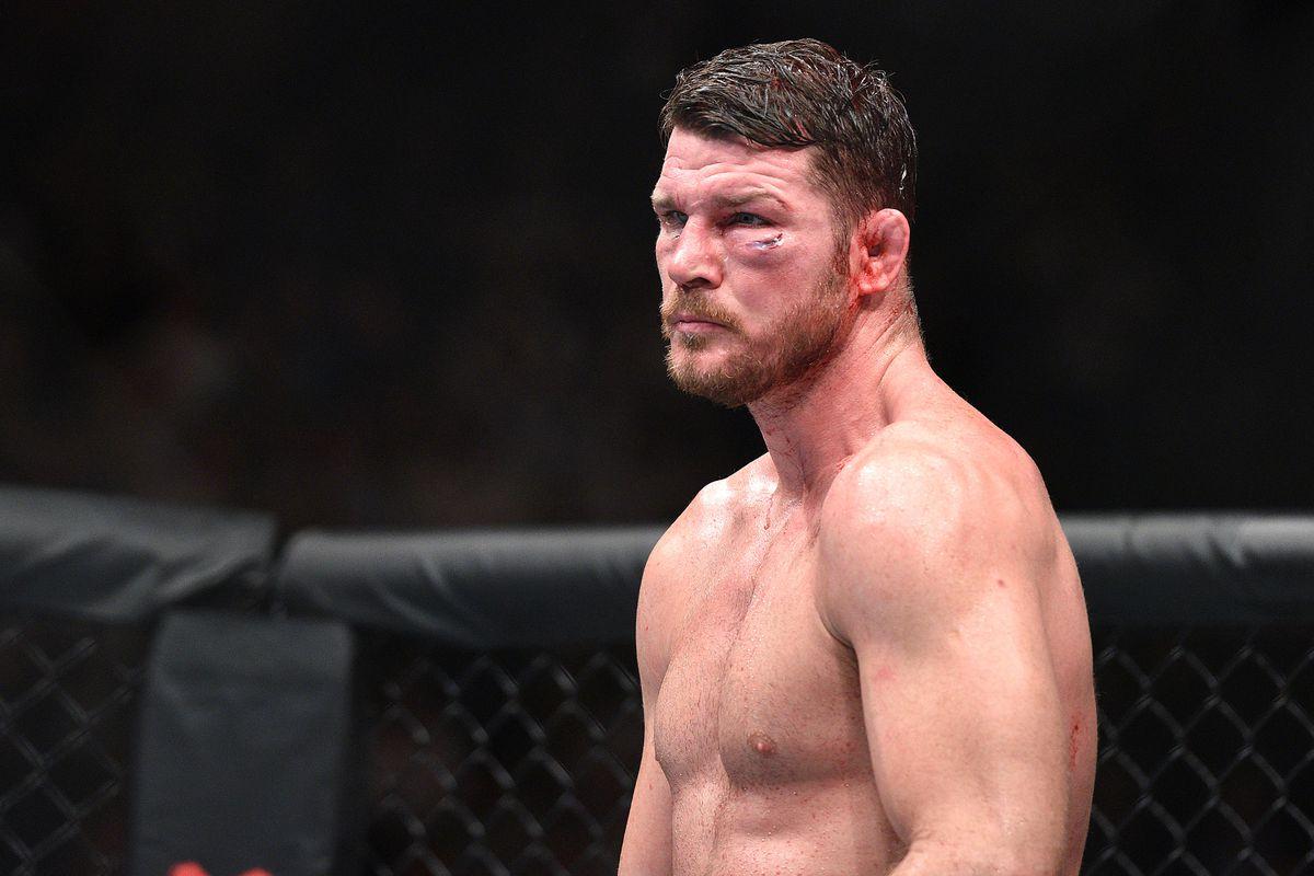Смениха коляното на звезда от UFC  (СНИМКА)