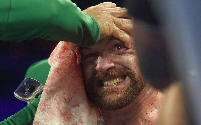 Тайсън Фюри в UFC мач срещу холивудска звезда (СНИМКА)