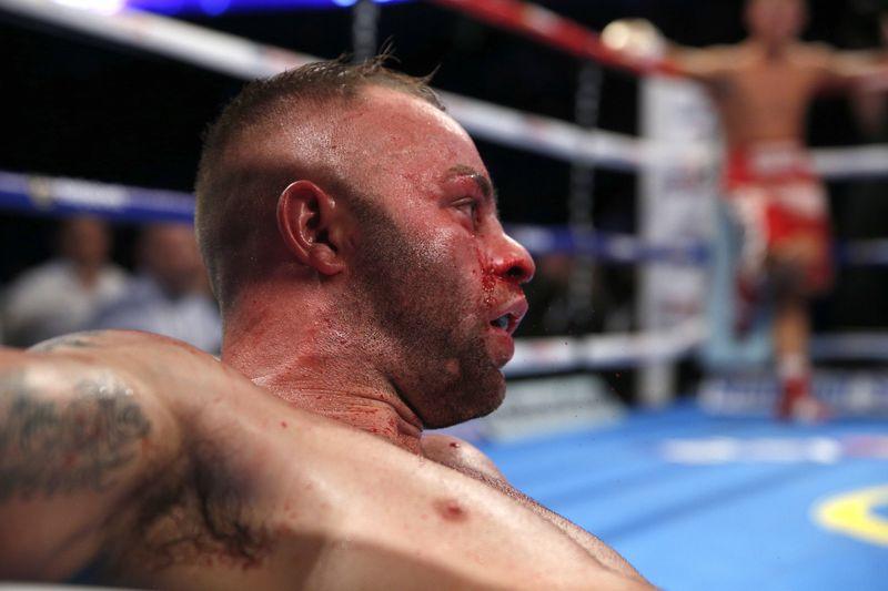 Най-често срещаните травми в бокса